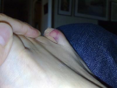 skadad lilltå