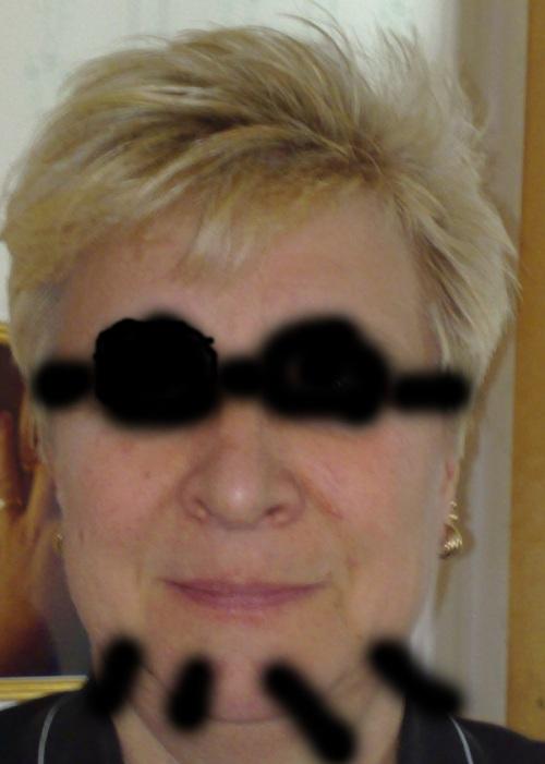 Tofflan m solbrilloro skägg