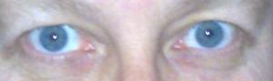 ögonen