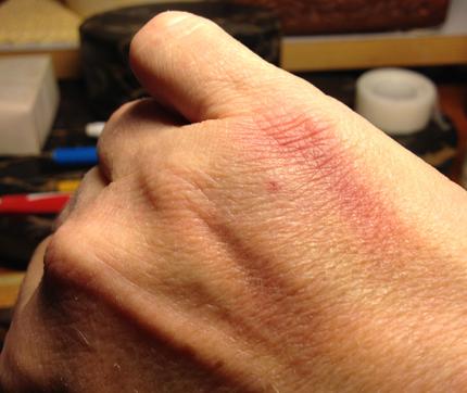 Små blåmärken på händerna