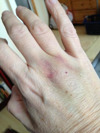 blåmärke på handen