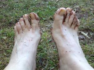 Grusiga fötter