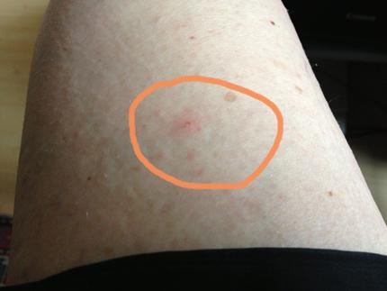 Myggbett på benet