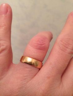 Ytlig propp på ringfingrets knoge