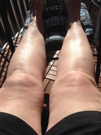 Solar benen