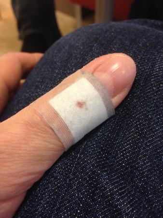 Plåster på tummen